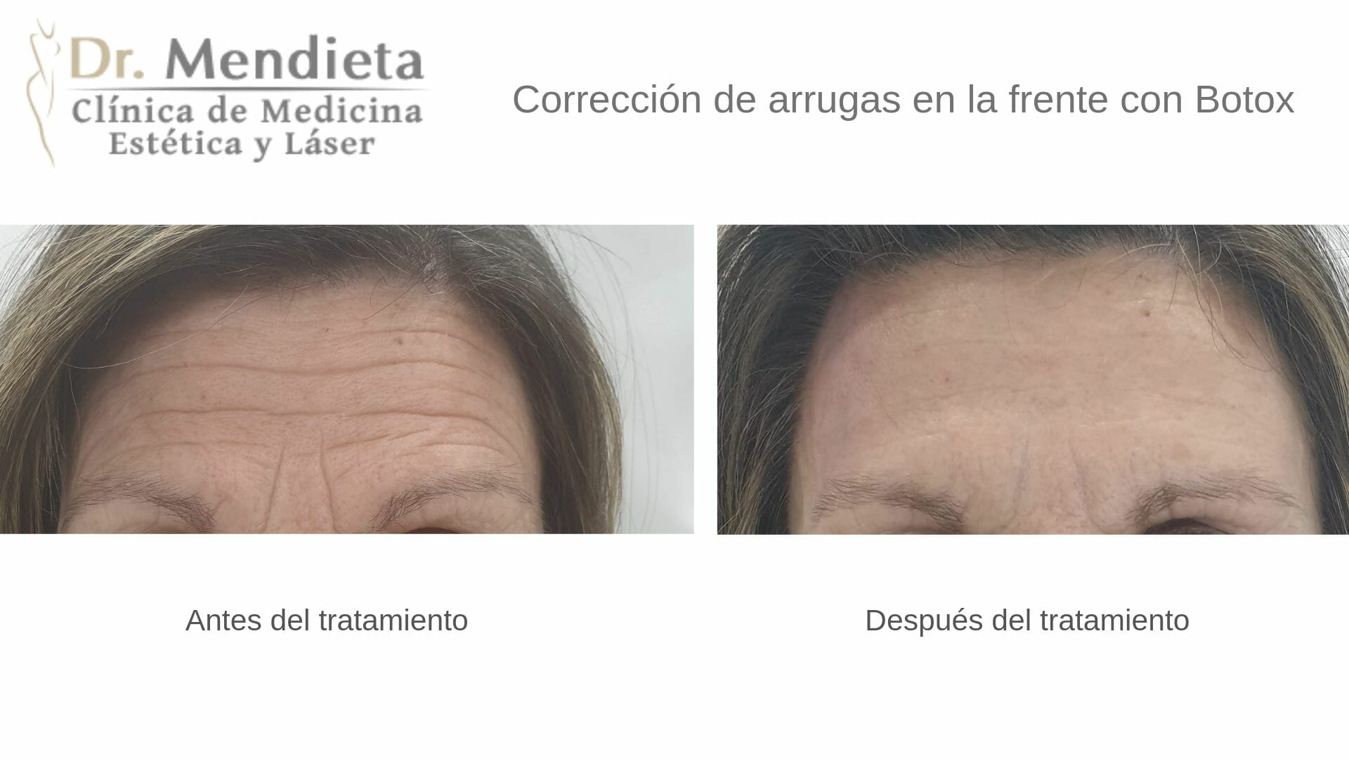 Eliminación de arrugas de la frente
