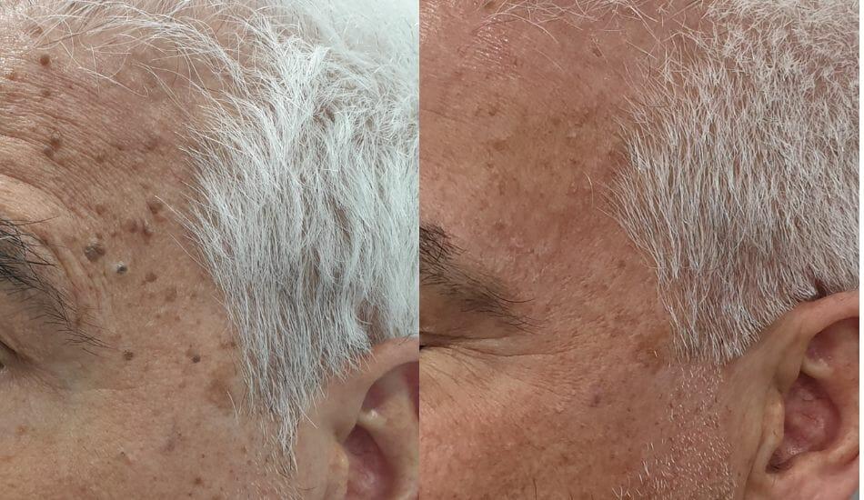Verrugas, manchas y acné